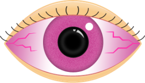 pink eye facts eye department portland eye care eyewear rh eyedepartment com pink eye cartoon pictures pink eye cartoon pic